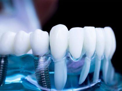 Протезирование зубов с опорой на Имплантант